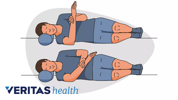 Illustration of how to perform the sleeper stretch for frozen shoulder.