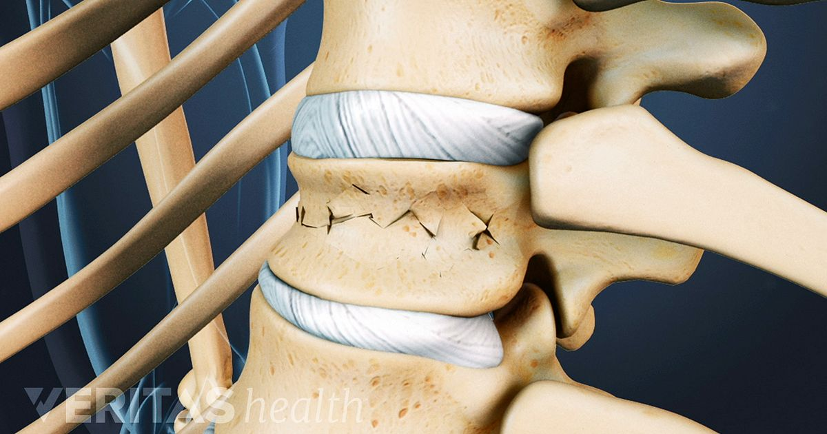 Kyphoplasty Considerations and Alternatives