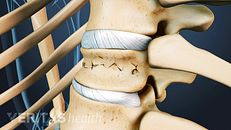Types of Spinal Compression Fractures