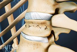 Kyphoplasty is a minimally invasive surgery for treating spinal compression fracture.