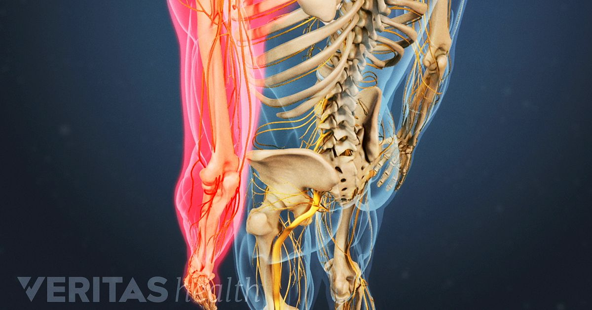 Typical Symptoms Of A Herniated Disc