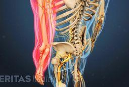 Herniated Disc Symptoms