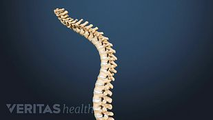 Spine illustrating curvature from kyphosis