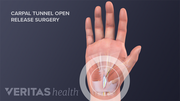 Palmar view of an open release incision site from carpal tunnel surgery.