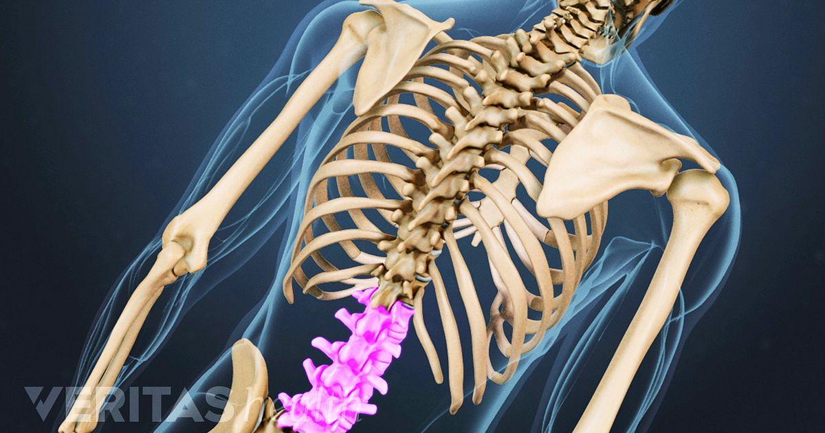 Causas de dolor en la columna lumbar