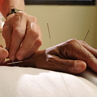 Acupuncturist inserting needles into a person's hand
