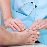 Doctor examining a patient's foot showing gout at the joint of the big toe.