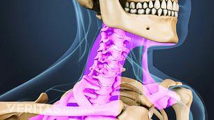Neck Mobility Cervical Fusion