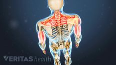 谁可能会受益于脊髓刺激