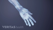 Hand and arm showing pain, tingling and numbness sensation