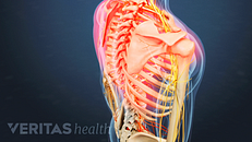 All About Upper Back Pain