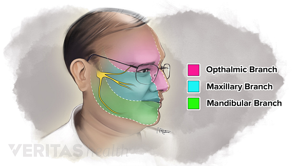Illustration of the trigeminal nerve branches and dermatomes
