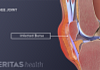Medical illustration of infected knee bursa