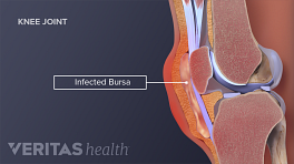 Medical illustration showing an infected bursa on the knee