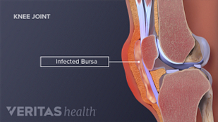 infected bursa
