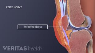 infected bursa
