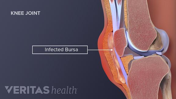 Medical illustration of infected knee bursae