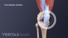 Medical illustration of inflamed, thickened knee bursa