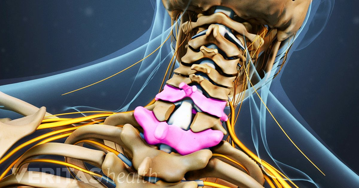 Spinous Process Definition Back Pain And Neck Pain Medical Glossary