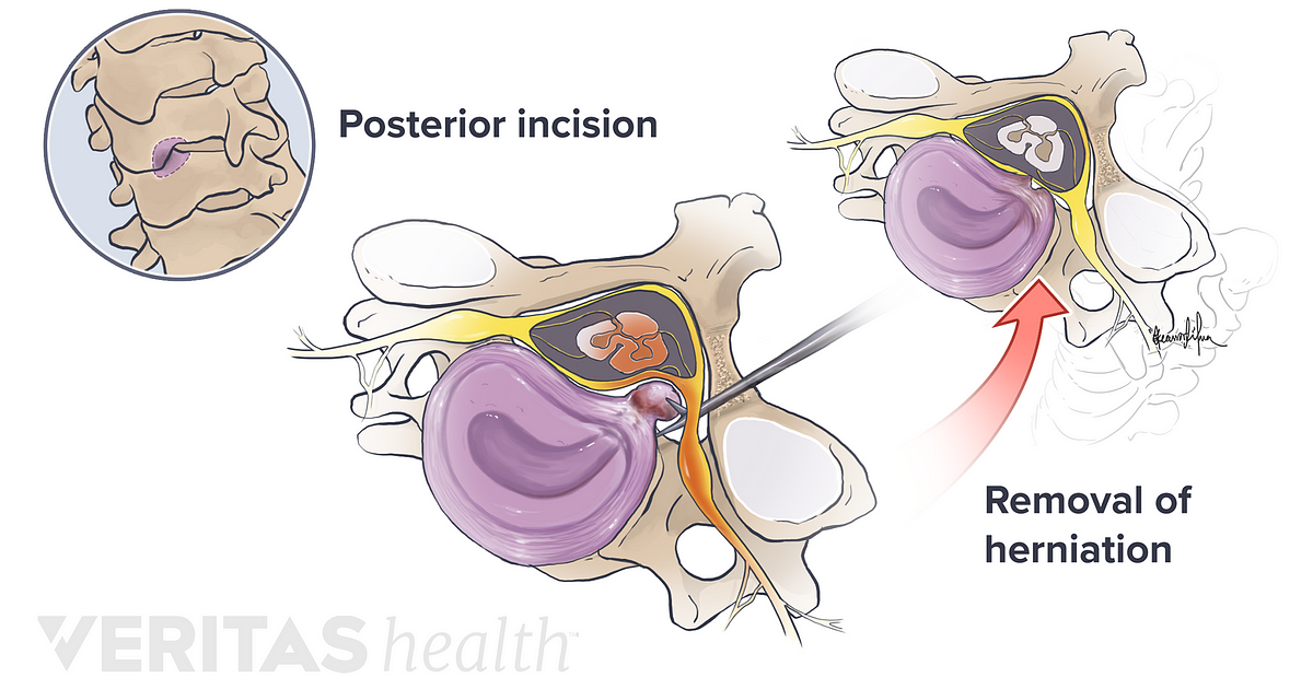 Postoperative Care for Cervical Herniated Disc Surgery