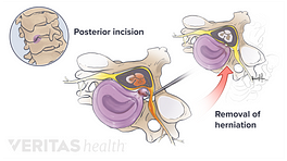 Illustration of the steps of a posterior cervical discectomy