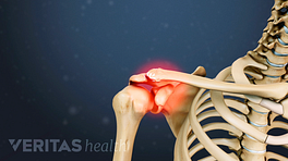 Radiating pain in clavicle of the shoulder joint