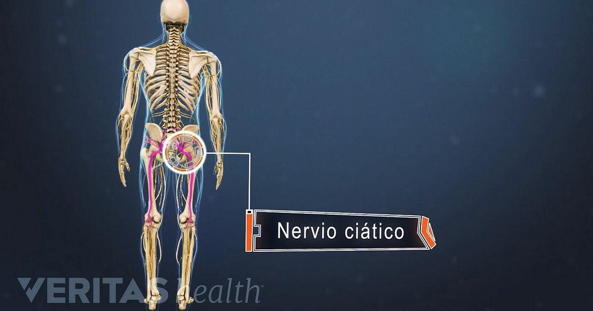 como saber si mi nervio ciatico esta inflamado