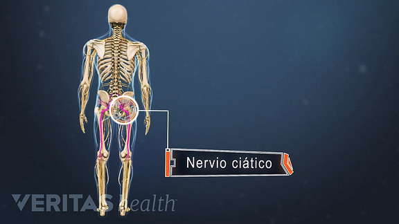 Posterior view of the body labeling the sciatic nerve in the pelvis.