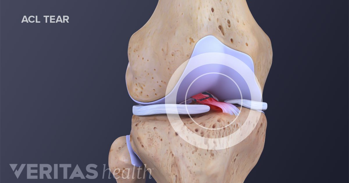 Anterior Cruciate Ligament Acl Definition Sports Injury Related