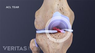 Illustration of the anterior view of a torn anterior cruciate ligament (ACL) of the knee