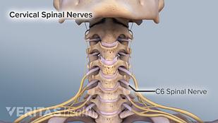 Cervical nerve roots