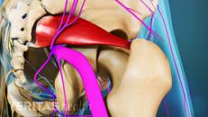 Types of Sciatic Nerve Pain