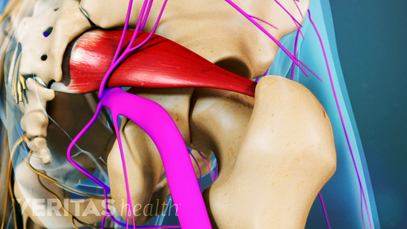 Piriformis syndrome occurs when the piriformis muscle spasms and irritates or compresses the sciatic nerve.