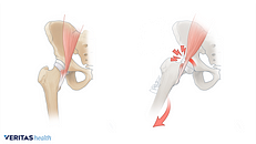 Pop, Click, Snap: Snapping Hip Syndrome