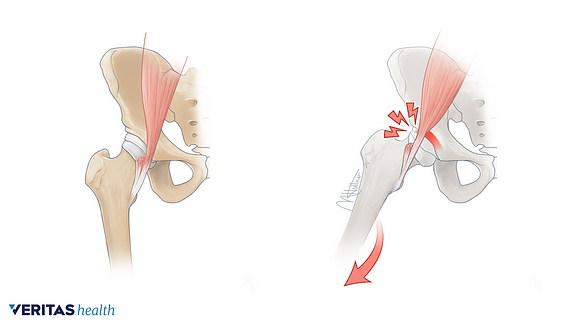 Side-by-side illustration of a stationary hip and one that is snapping as it rotates