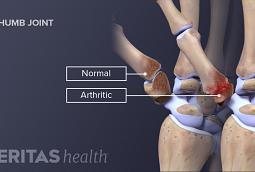 Osteoarthritis Hand Pain