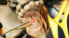 Radiofrequency Ablation (RFA) Side Effects and Risks