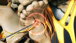Lumbar radiofrequency ablation into facet joint.
