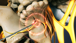 Animated video still lumbar radiofrequency ablation