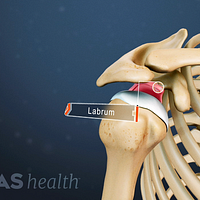 Anterior view of the shoulder joint labeling the labrum.