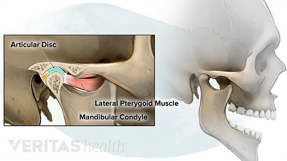 Temporomandibular Joint anatomy illustration showing the articular disc, lateral pterygoid muscle and mandibular condyle