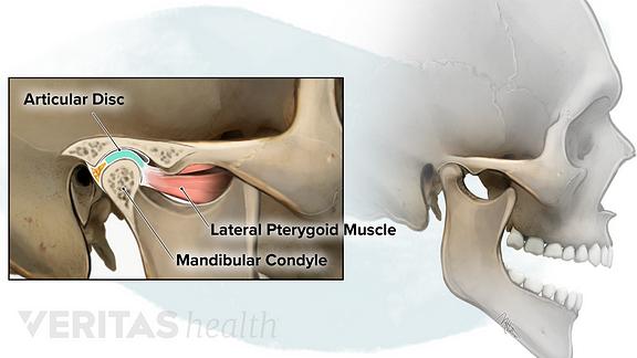 Temporomandibular Joint anatomy showing the articular disc, lateral pterygoid muscle and mandibular condyle