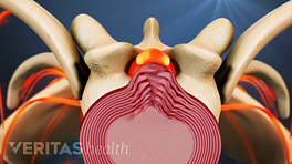 Superior view of a herniated disc in the cervical spine.