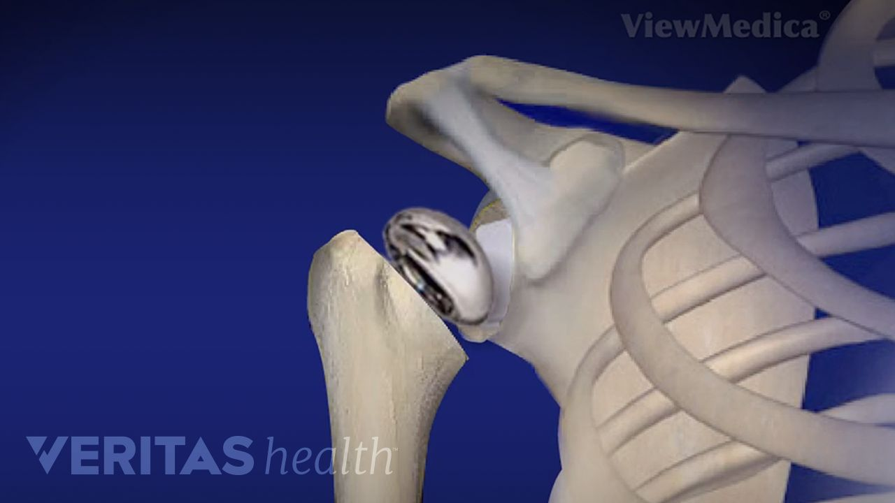 Shoulder Replacement Surgery Video | Arthritis-Health
