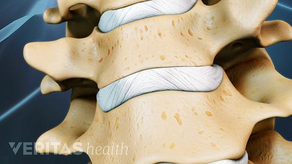 spinal discs of cervical spine