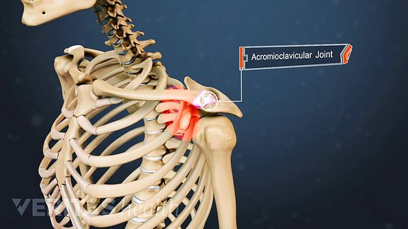 A Visual Guide to Shoulder (AC Joint) Arthritis