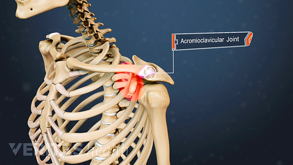 Medical illustration showing the acromioclavicular joint