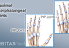 Dorsal and palmar views fo the proximal interphalangeal joints.