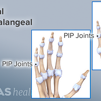 Palmar and dorsal view of the hand labeling the proximal interphalangeal joints.