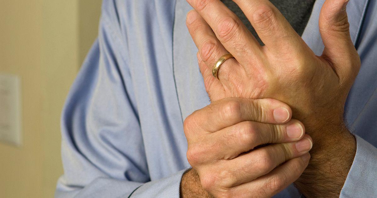 Treat To Target A New Approach To Rheumatoid Arthritis Treatment